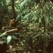 Tropikal Hastalık Resimleri 2